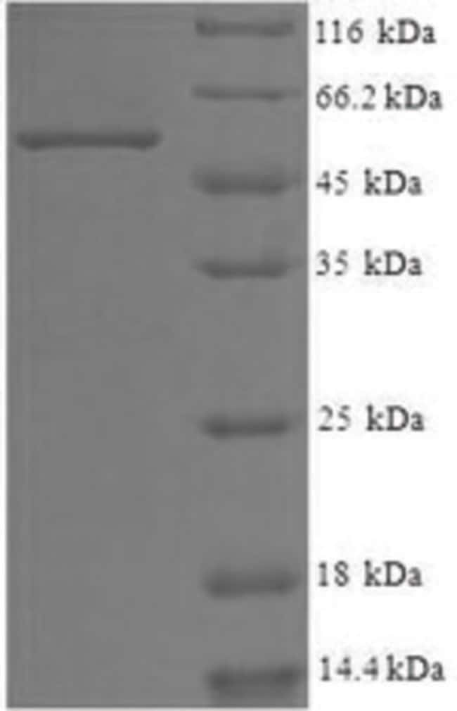 enQuireBio™ Recombinant Human WD repeat-containing protein 1 50μg enQuireBio™ Recombinant Human WD repeat-containing protein 1