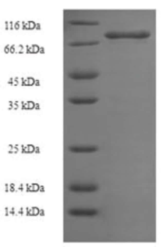 enQuireBio™Recombinant Human E3 ubiquitin-protein ligase XIAP Protein 1mg enQuireBio™Recombinant Human E3 ubiquitin-protein ligase XIAP Protein