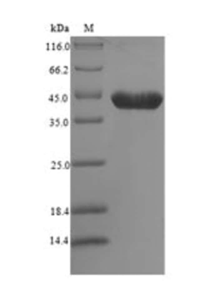 enQuireBio™Recombinant Mouse 14-3-3 protein zeta / delta Protein 100μg enQuireBio™Recombinant Mouse 14-3-3 protein zeta / delta Protein