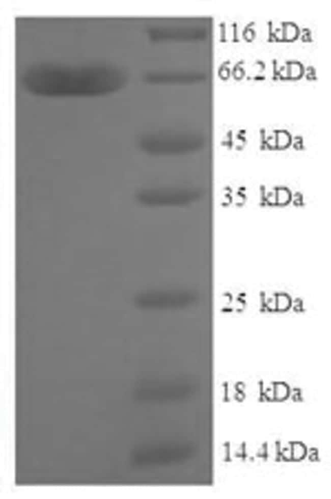 enQuireBio™Recombinant Human Zinc finger protein 114 Protein 1mg enQuireBio™Recombinant Human Zinc finger protein 114 Protein