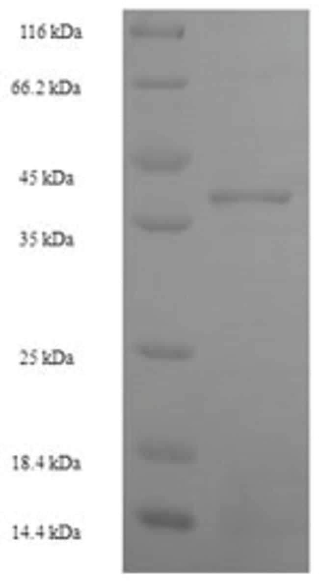 enQuireBio™Recombinant Human Zinc finger protein 581 Protein 50μg enQuireBio™Recombinant Human Zinc finger protein 581 Protein