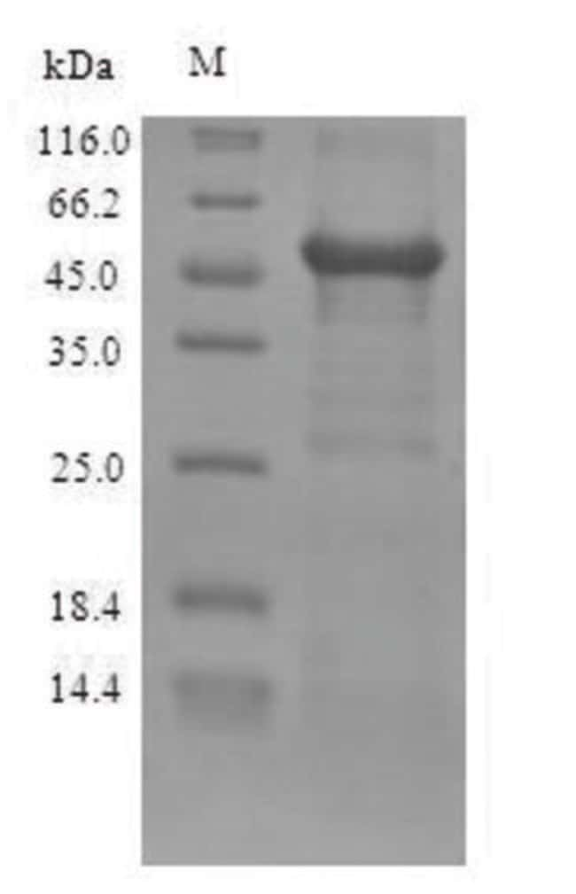 enQuireBio™ Recombinant Human ZRANB2 Protein 1mg enQuireBio™ Recombinant Human ZRANB2 Protein