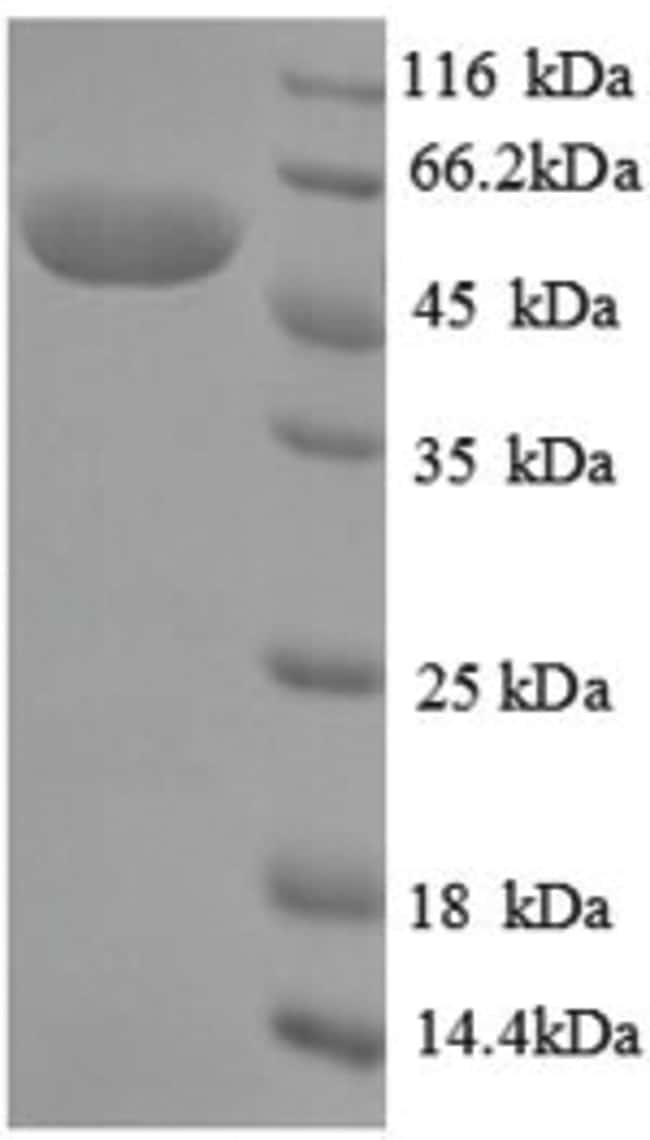 enQuireBio™Recombinant Pseudomonas Creatinine amidohydrolase Protein 100μg enQuireBio™Recombinant Pseudomonas Creatinine amidohydrolase Protein