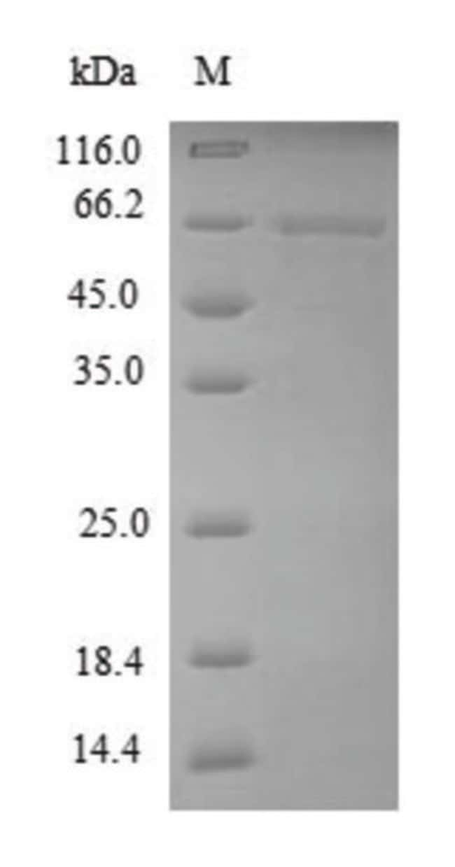 enQuireBio™ Recombinant Dog MMP13 Protein 100μg enQuireBio™ Recombinant Dog MMP13 Protein