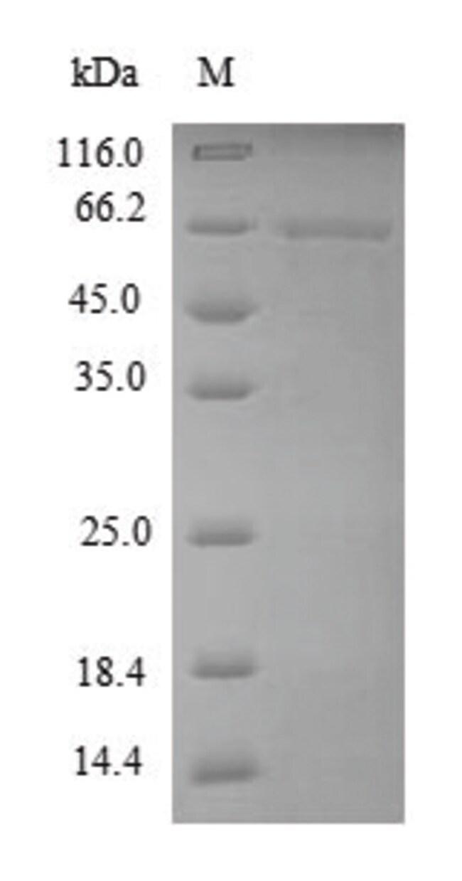 enQuireBio™Recombinant Dog MMP13 Protein: Proteínas A-Z Proteínas