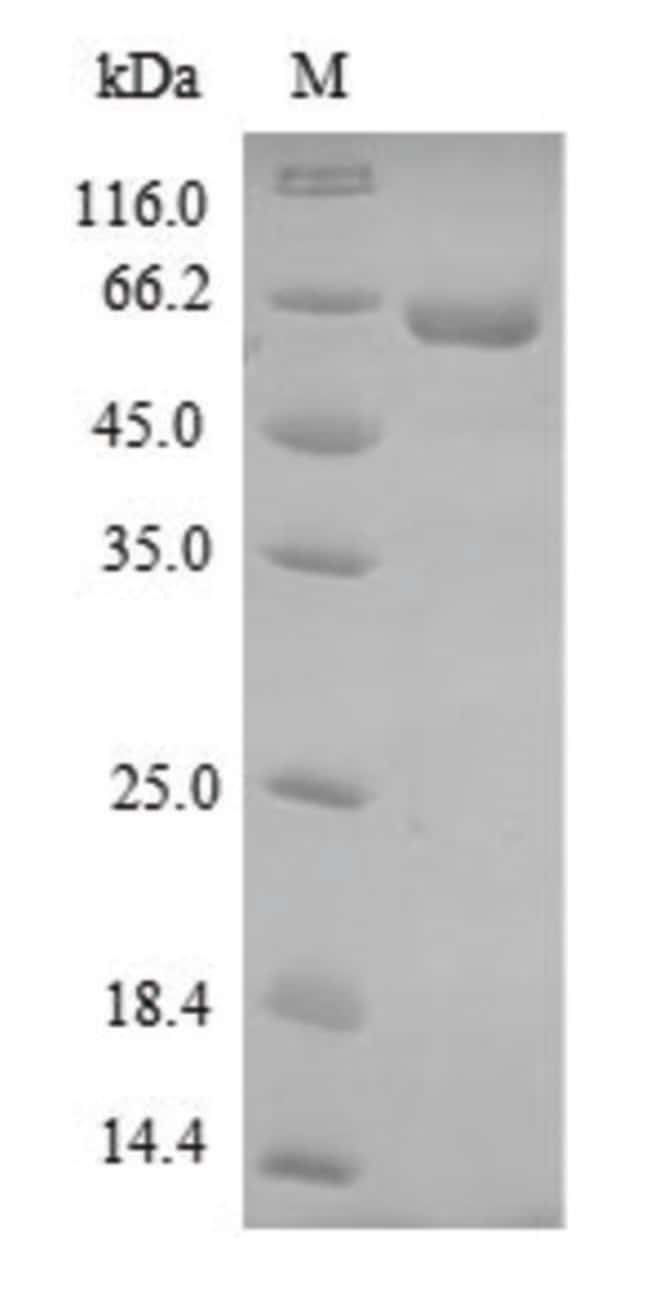 enQuireBio™ Recombinant Dog DMP1 Protein 500μg enQuireBio™ Recombinant Dog DMP1 Protein