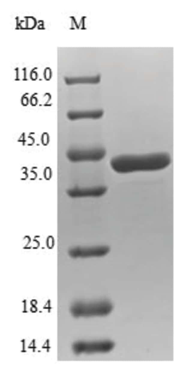 enQuireBio™Recombinant Human NUDT2 / Ap4A hydrolase Protein 200μg enQuireBio™Recombinant Human NUDT2 / Ap4A hydrolase Protein