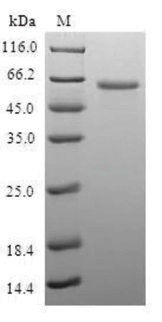 enQuireBio™ Recombinant Human LIMS1 Protein 100μg enQuireBio™ Recombinant Human LIMS1 Protein