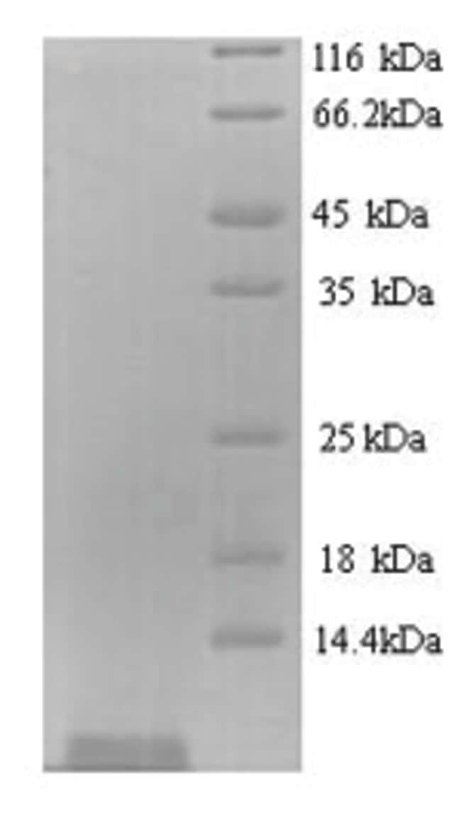 enQuireBio™Recombinant Bacteriophage Shiga-like toxin 1 subunit B Protein 500μg enQuireBio™Recombinant Bacteriophage Shiga-like toxin 1 subunit B Protein