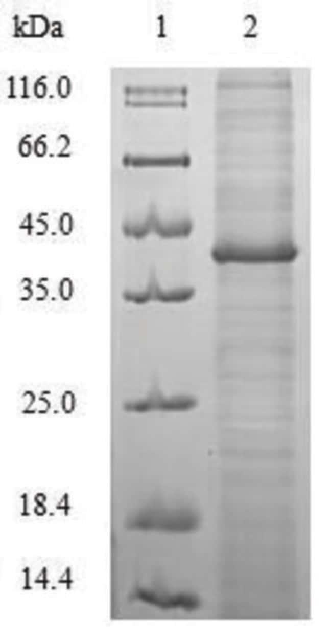 enQuireBio™Recombinant H. pylori cagA Protein 10μg enQuireBio™Recombinant H. pylori cagA Protein
