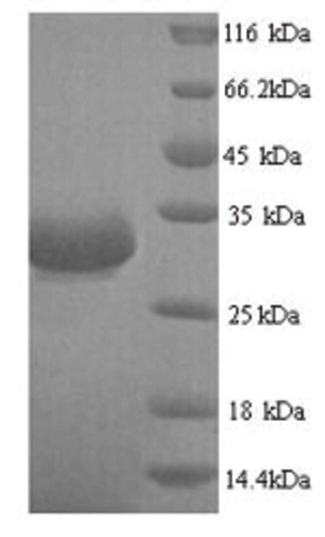 enQuireBio™Recombinant E. coli Beta-lactamase CTX-M-1 Protein 100μg enQuireBio™Recombinant E. coli Beta-lactamase CTX-M-1 Protein
