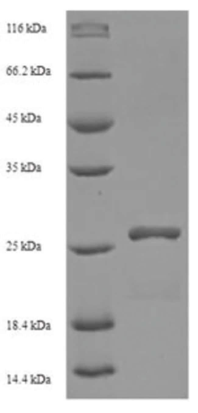 enQuireBio™Recombinant Human HLA-DMA Protein 100μg enQuireBio™Recombinant Human HLA-DMA Protein