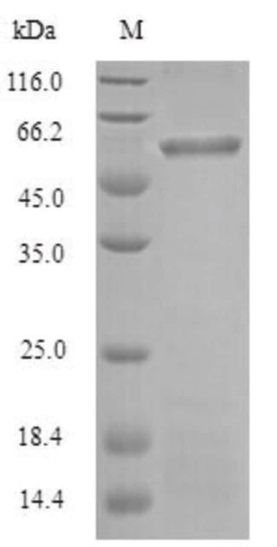enQuireBio™Recombinant P. gingivalis Gingipain R1 Protein 500μg enQuireBio™Recombinant P. gingivalis Gingipain R1 Protein