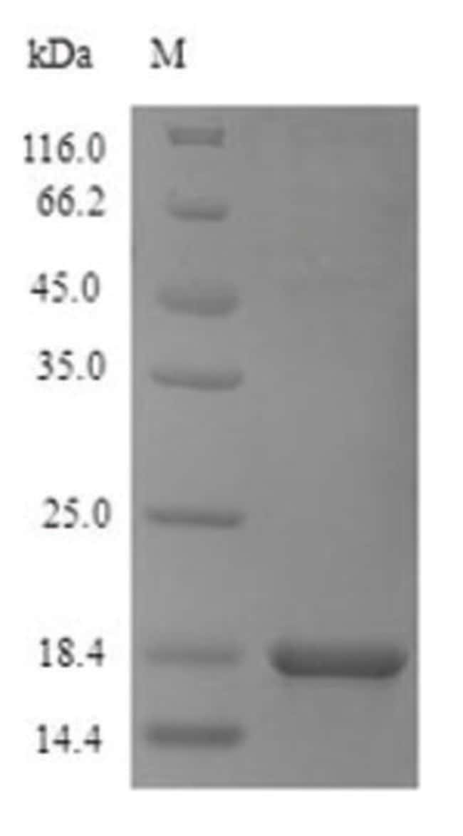 enQuireBio™Recombinant S. cerevisiae Dipeptidyl aminopeptidase A Protein 500μg enQuireBio™Recombinant S. cerevisiae Dipeptidyl aminopeptidase A Protein