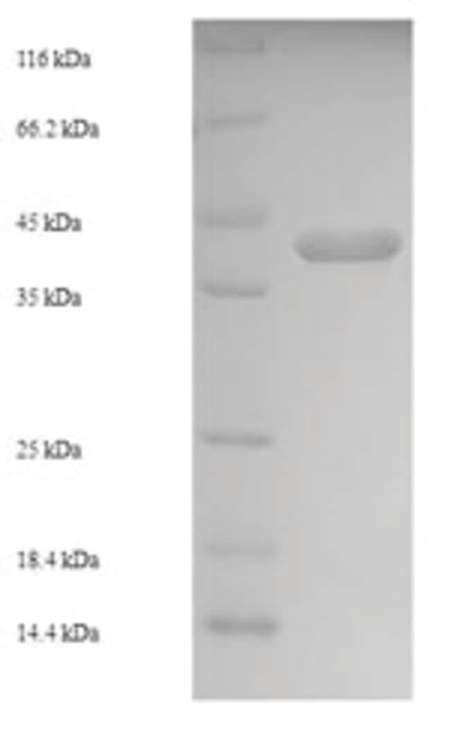 enQuireBio™Recombinant S. aureus Enterotoxin type C-2 Protein 1mg enQuireBio™Recombinant S. aureus Enterotoxin type C-2 Protein