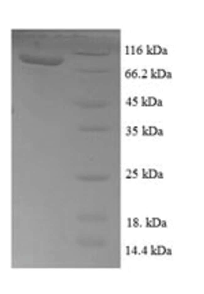 enQuireBio™Recombinant E. coli Transketolase 1 Protein 500μg enQuireBio™Recombinant E. coli Transketolase 1 Protein