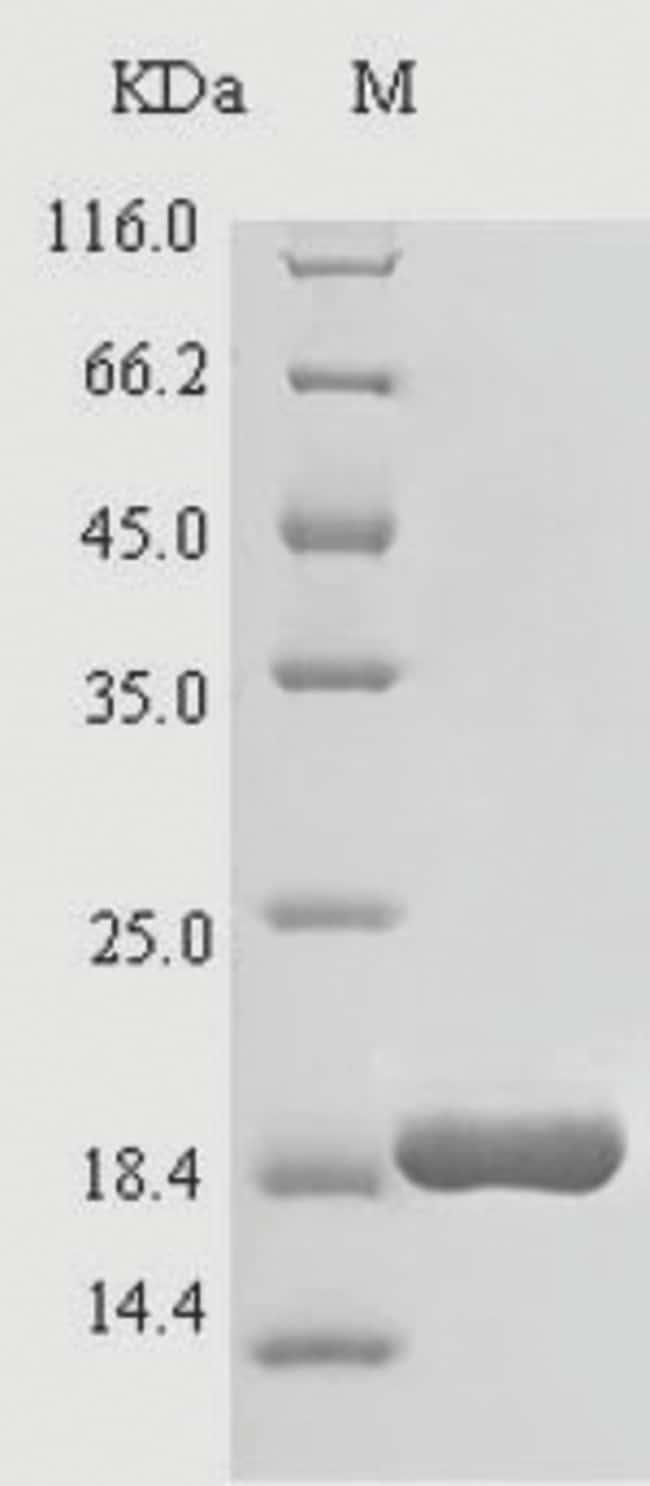 enQuireBio™Recombinant Bovine Cathelicidin-4 Protein 100μg enQuireBio™Recombinant Bovine Cathelicidin-4 Protein