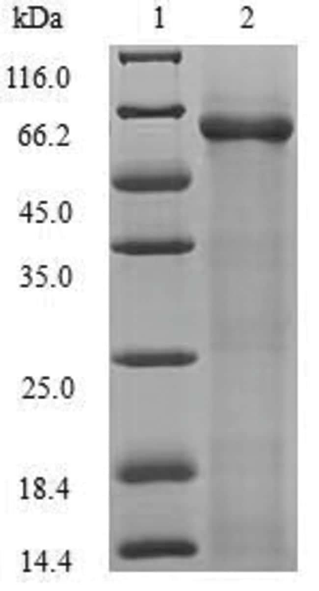 enQuireBio™Recombinant E. coli RNA-splicing ligase RtcB Protein 50μg enQuireBio™Recombinant E. coli RNA-splicing ligase RtcB Protein