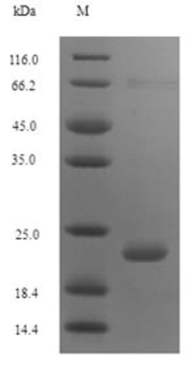 enQuireBio™Recombinant Pig Antibacterial peptide PMAP-36 Protein: Proteínas A-Z Proteínas