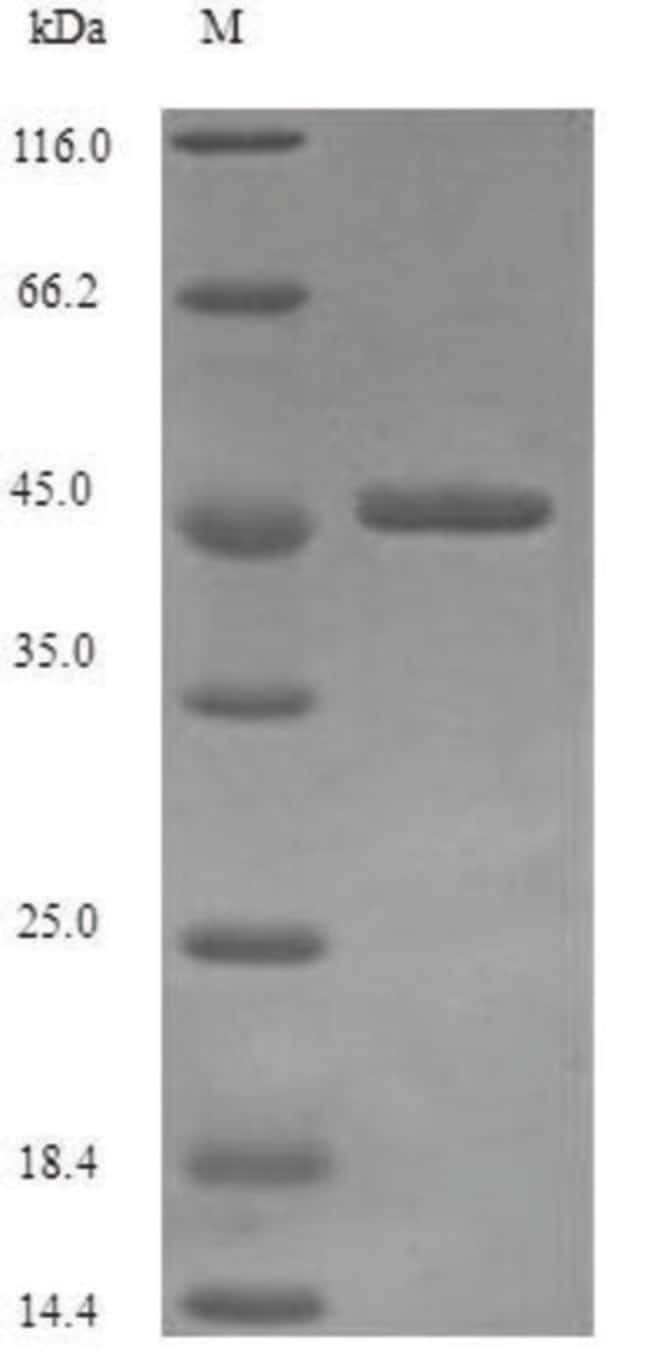 enQuireBio™Recombinant H. pylori Vacuolating cytotoxin autotransporter Protein 100μg enQuireBio™Recombinant H. pylori Vacuolating cytotoxin autotransporter Protein