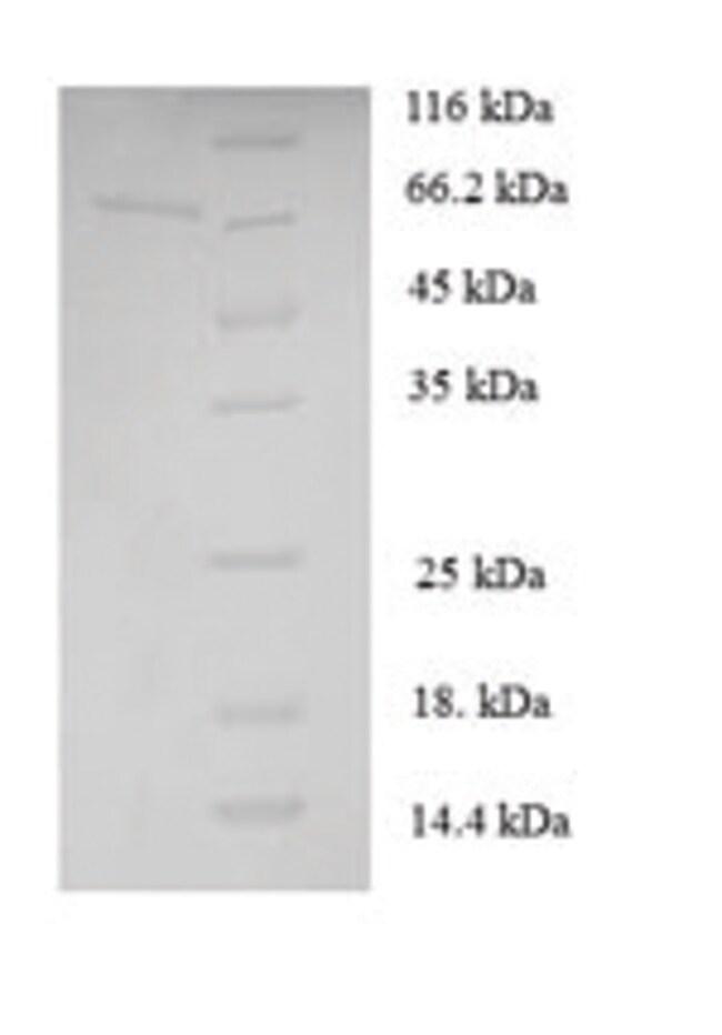enQuireBio™Recombinant S. cerevisiae Cystathionine beta-lyase Protein 10μg enQuireBio™Recombinant S. cerevisiae Cystathionine beta-lyase Protein