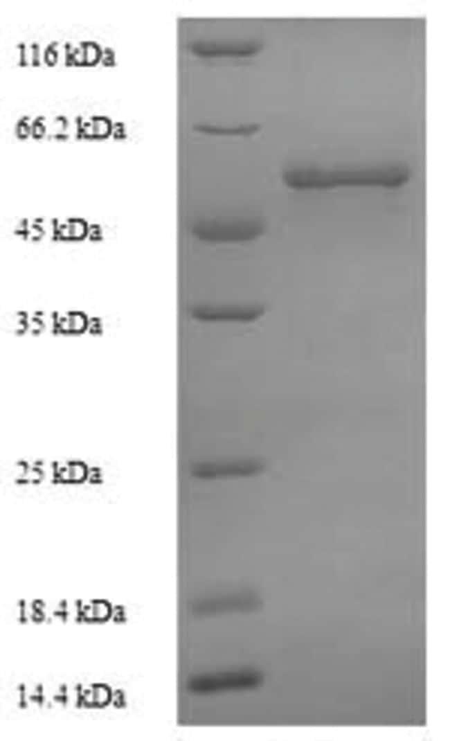 enQuireBio™Recombinant M. tuberculosis Steroid C26-monooxygenase Protein 200μg enQuireBio™Recombinant M. tuberculosis Steroid C26-monooxygenase Protein