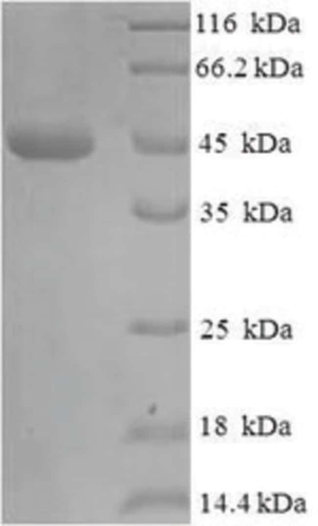 enQuireBio™ Recombinant E. coli Beta-lactamase TEM Protein 100μg enQuireBio™ Recombinant E. coli Beta-lactamase TEM Protein