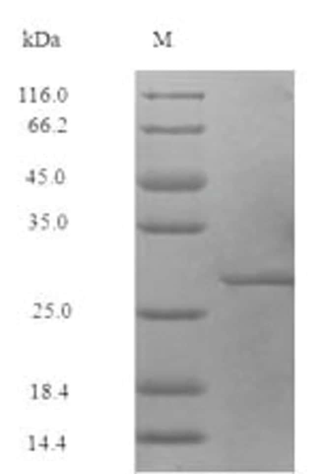 enQuireBio™Recombinant S. aureus 50S ribosomal protein L7 / L12 Protein 100μg enQuireBio™Recombinant S. aureus 50S ribosomal protein L7 / L12 Protein