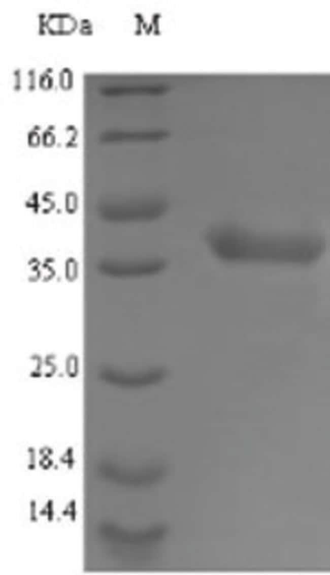 enQuireBio™Recombinant S. aureus LDH-A / LDHA Protein 100μg enQuireBio™Recombinant S. aureus LDH-A / LDHA Protein