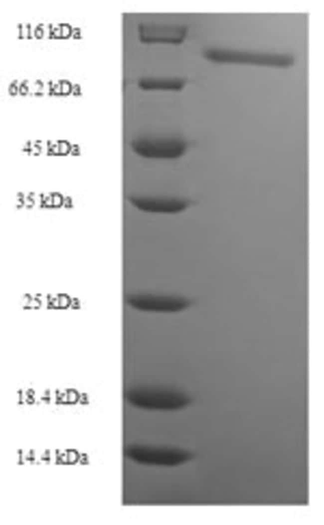 enQuireBio™Recombinant E. coli nrdA Protein 1mg enQuireBio™Recombinant E. coli nrdA Protein