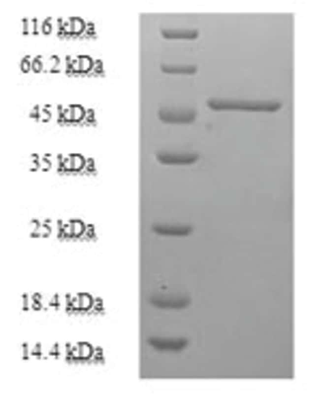 enQuireBio™Recombinant Human Purine nucleoside phosphorylase / PNP Protein 100μg enQuireBio™Recombinant Human Purine nucleoside phosphorylase / PNP Protein