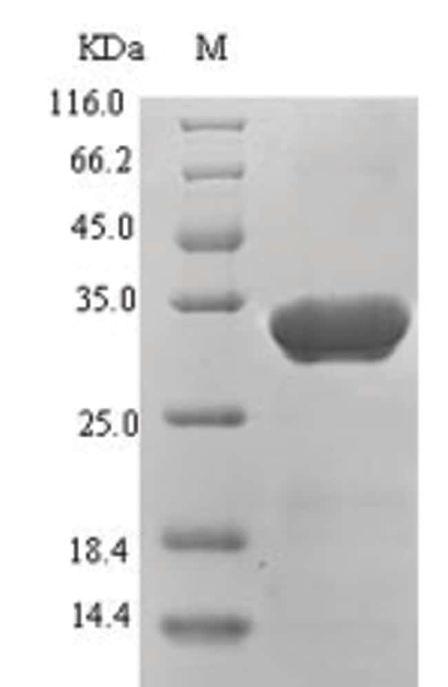 enQuireBio™Recombinant hepatitis protein 1 1mg enQuireBio™Recombinant hepatitis protein 1