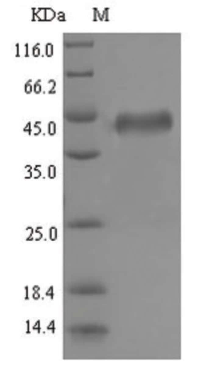 enQuireBio™Recombinant Epstein-Barr cytomegalovirus (HCMV) Glycoprotein B / gB Protein 1mg enQuireBio™Recombinant Epstein-Barr cytomegalovirus (HCMV) Glycoprotein B / gB Protein
