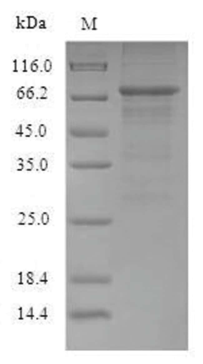 enQuireBio™Recombinant Influenza A H1N1 (Puerto Rico / 8 / 1934) NucleoProtein 500μg enQuireBio™Recombinant Influenza A H1N1 (Puerto Rico / 8 / 1934) NucleoProtein