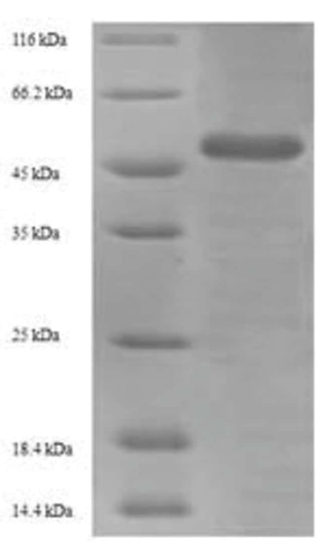 enQuireBio™Recombinant Influenza A H3N2 (England / 878 / 1969) Hemagglutinin Protein 10μg enQuireBio™Recombinant Influenza A H3N2 (England / 878 / 1969) Hemagglutinin Protein