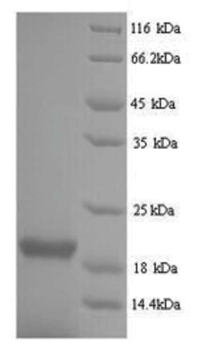 enQuireBio™Recombinant Influenza B (strain B / Singapore / 222 / 1979) NucleoProtein 50μg enQuireBio™Recombinant Influenza B (strain B / Singapore / 222 / 1979) NucleoProtein