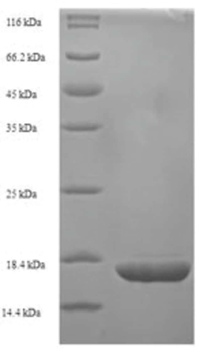 enQuireBio™Recombinant E. coli 8-oxo-dGTP diphosphatase Protein 1mg enQuireBio™Recombinant E. coli 8-oxo-dGTP diphosphatase Protein