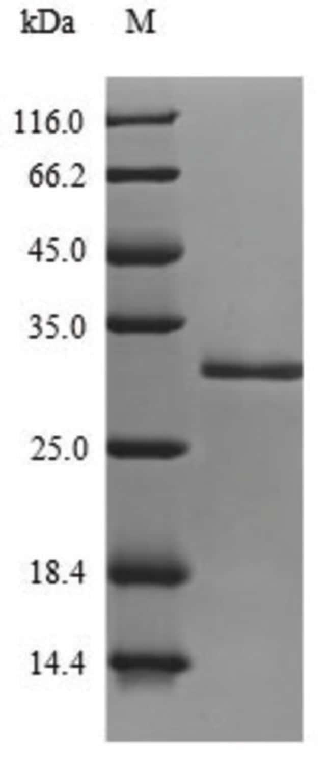 enQuireBio™Recombinant S. aureus Enterotoxin type H Protein 50μg enQuireBio™Recombinant S. aureus Enterotoxin type H Protein