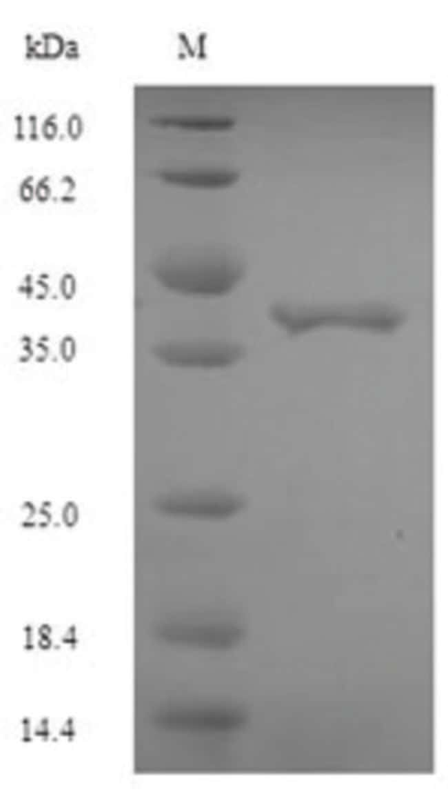 enQuireBio™Recombinant E. coli Elongation factor P Protein 200μg enQuireBio™Recombinant E. coli Elongation factor P Protein