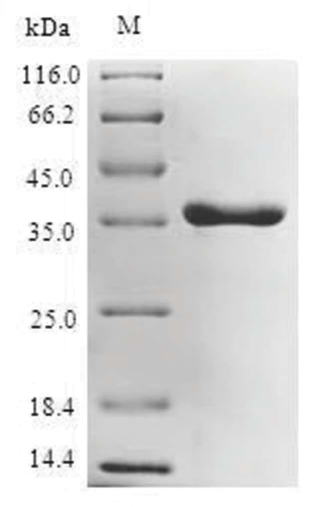 enQuireBio™Recombinant E. coli UDP-3-O-acyl-N-acetylglucosamine deacetylase Protein 10μg enQuireBio™Recombinant E. coli UDP-3-O-acyl-N-acetylglucosamine deacetylase Protein