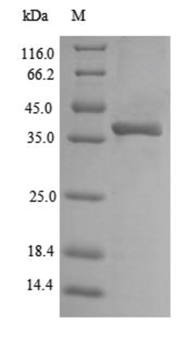 enQuireBio™Recombinant E. coli Outer membrane protein 1 100μg enQuireBio™Recombinant E. coli Outer membrane protein 1