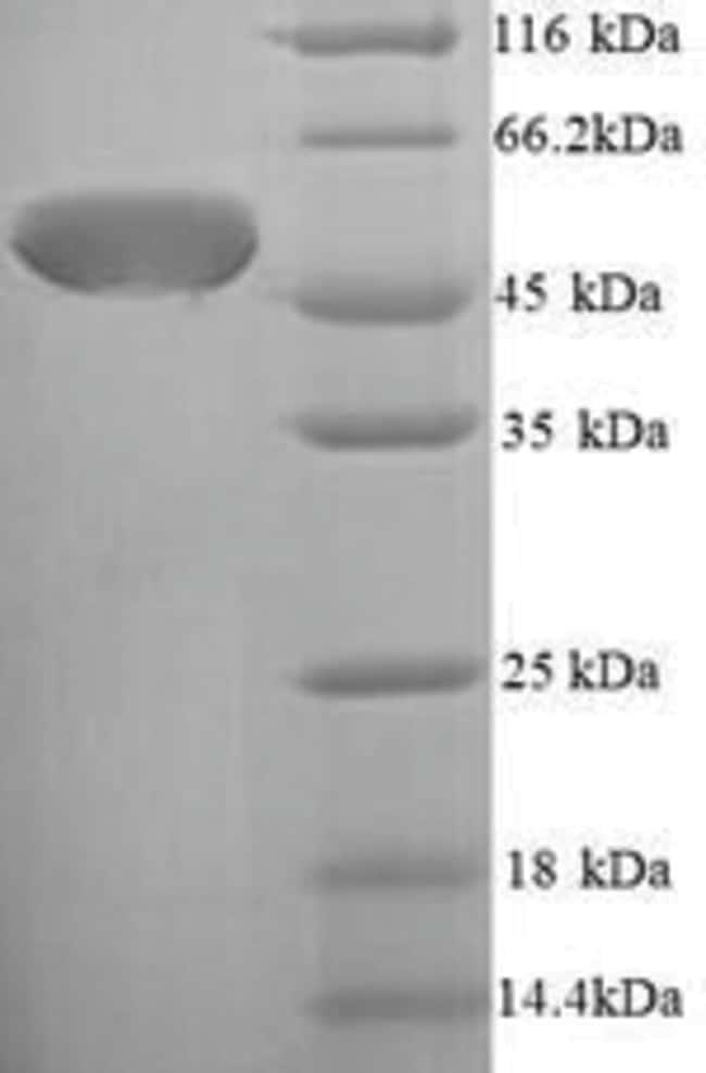 enQuireBio™Recombinant E. coli Chaperone SurA Protein 50μg enQuireBio™Recombinant E. coli Chaperone SurA Protein