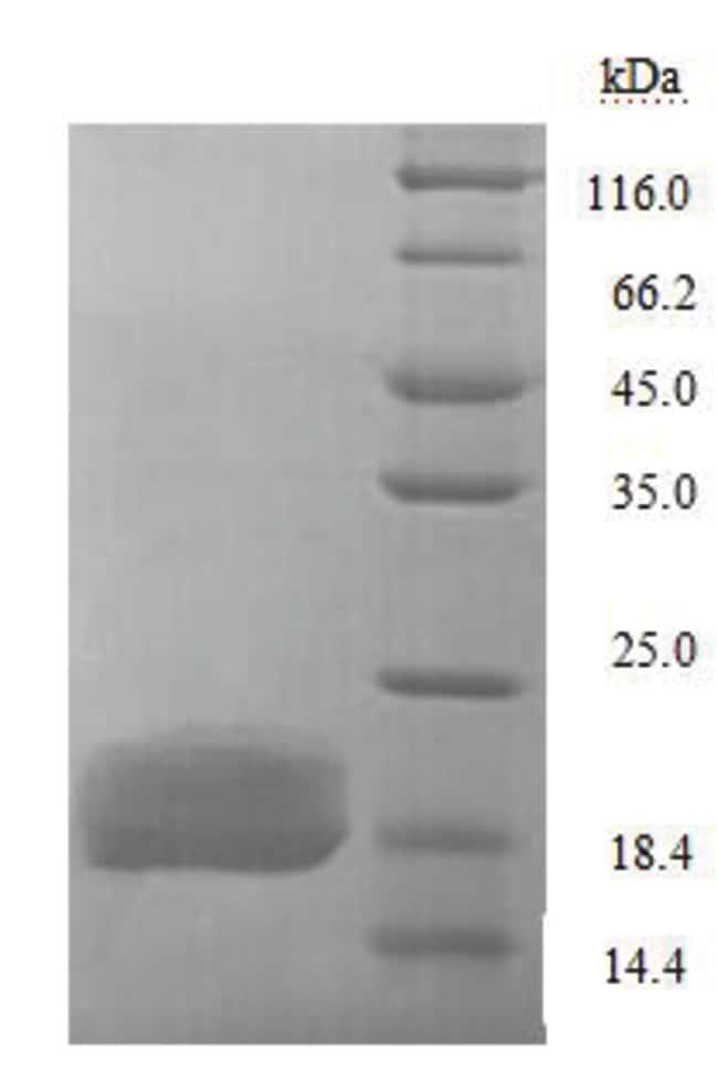 enQuireBio™Recombinant E. coli LptA Protein 100μg enQuireBio™Recombinant E. coli LptA Protein
