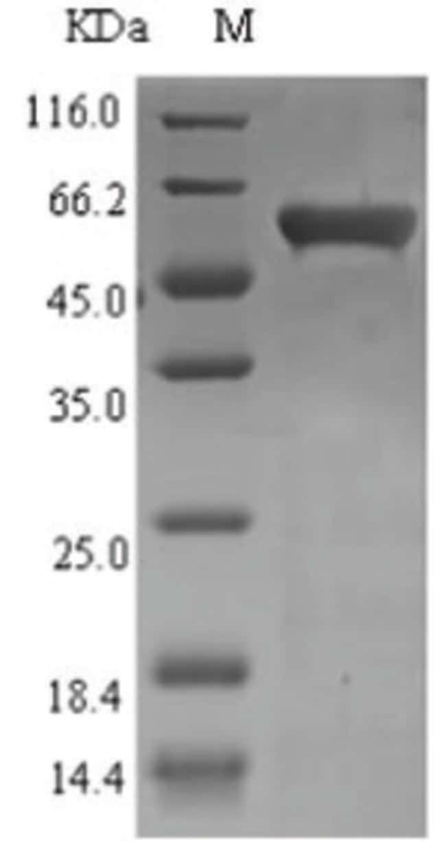 enQuireBio™ Recombinant Bacteriophage Recombination and repair Protein 10μg enQuireBio™ Recombinant Bacteriophage Recombination and repair Protein
