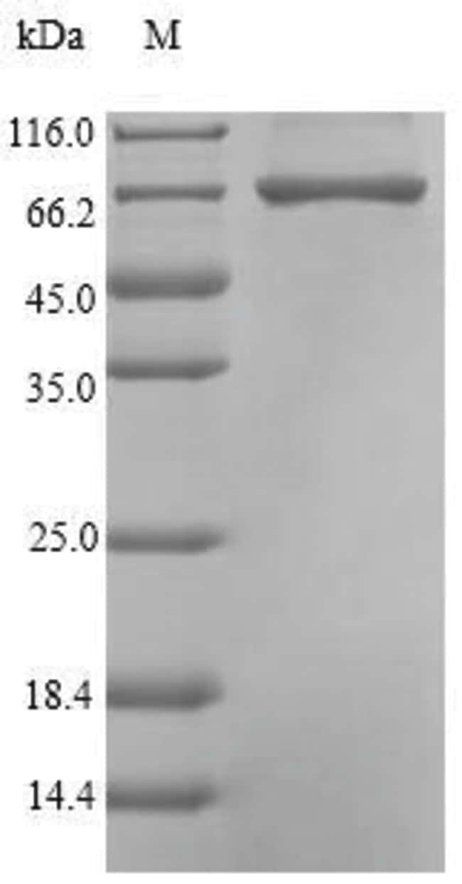 enQuireBio™Recombinant Pseudomonas Carboxypeptidase G2 Protein 100μg enQuireBio™Recombinant Pseudomonas Carboxypeptidase G2 Protein