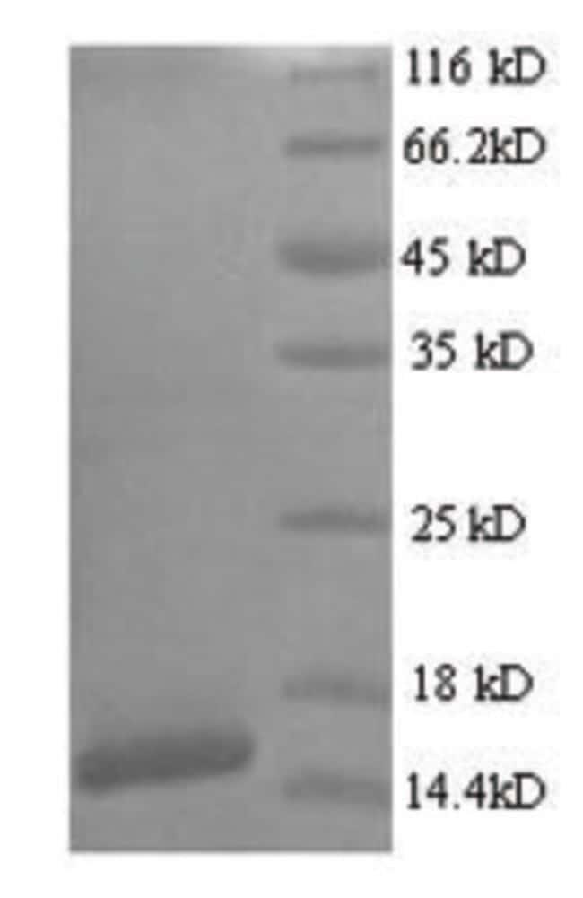enQuireBio™Recombinant Human Protein E7 Protein 200μg enQuireBio™Recombinant Human Protein E7 Protein