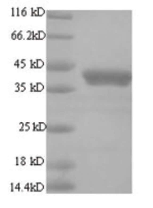 enQuireBio™ Recombinant Human Regulatory protein E2 Protein 10μg enQuireBio™ Recombinant Human Regulatory protein E2 Protein