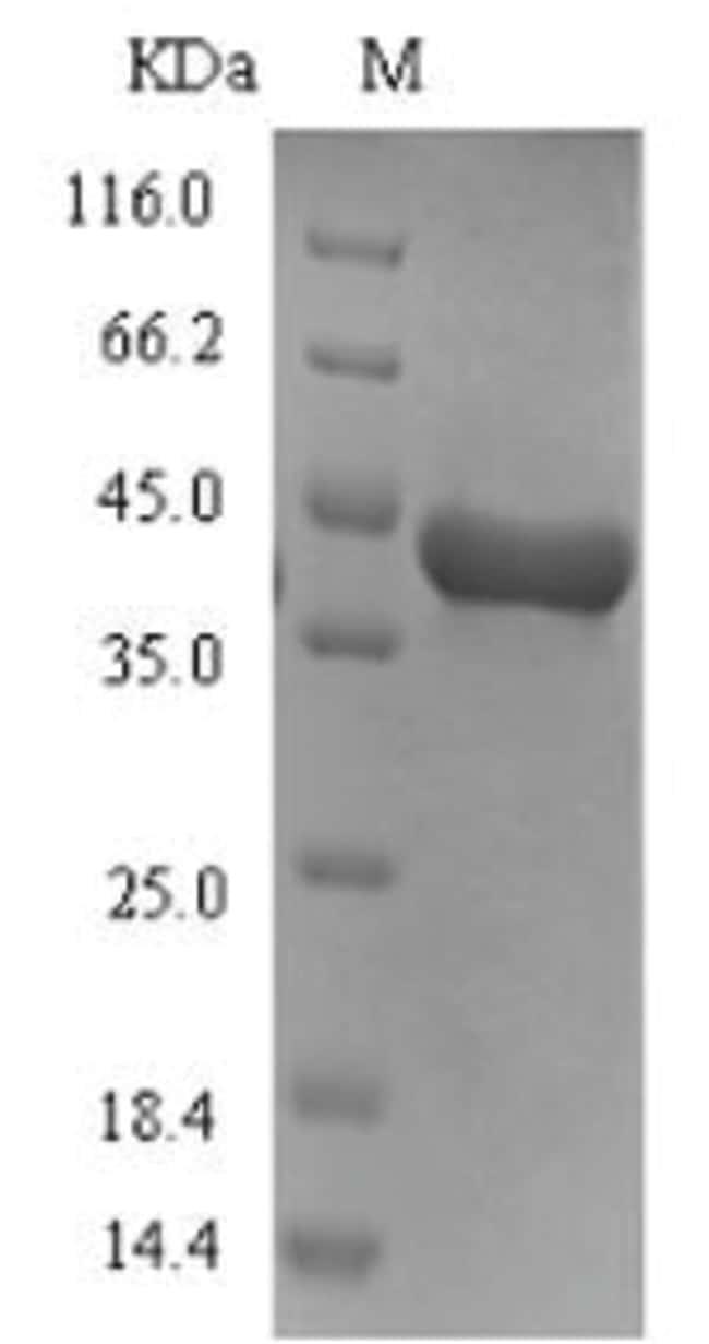 enQuireBio™Recombinant Dog Arginine esterase Protein 1mg enQuireBio™Recombinant Dog Arginine esterase Protein