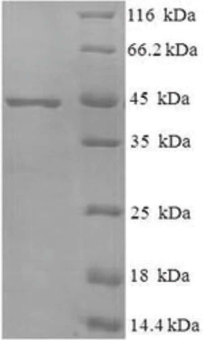 enQuireBio™Recombinant M. tuberculosis MPT51 / MPB51 antigen Protein 200μg enQuireBio™Recombinant M. tuberculosis MPT51 / MPB51 antigen Protein