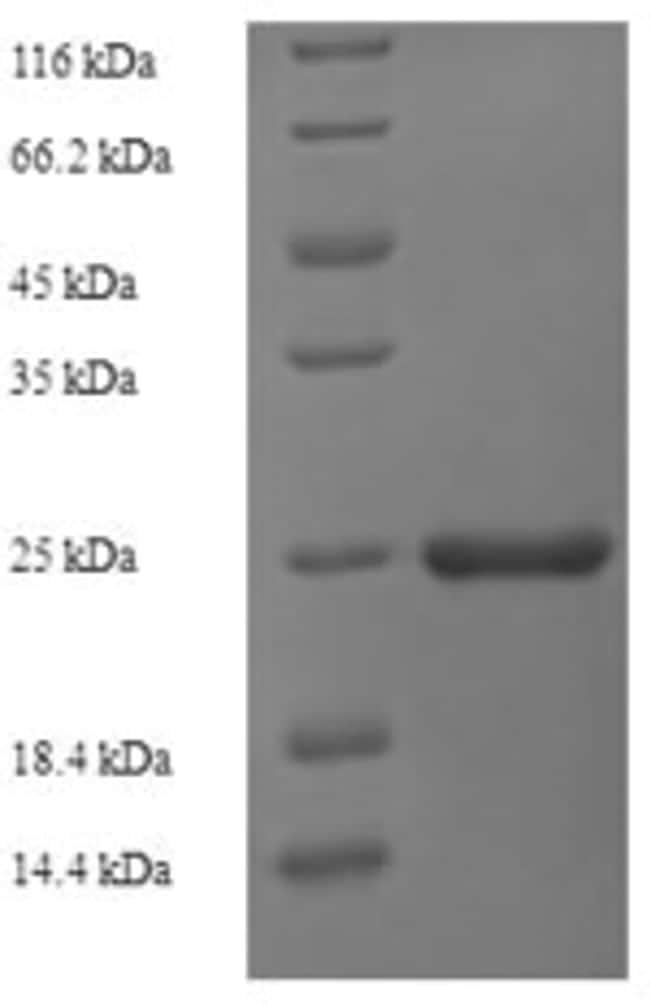 enQuireBio™Recombinant M. tuberculosis ESAT-6-like protein EsxH Protein 500μg enQuireBio™Recombinant M. tuberculosis ESAT-6-like protein EsxH Protein
